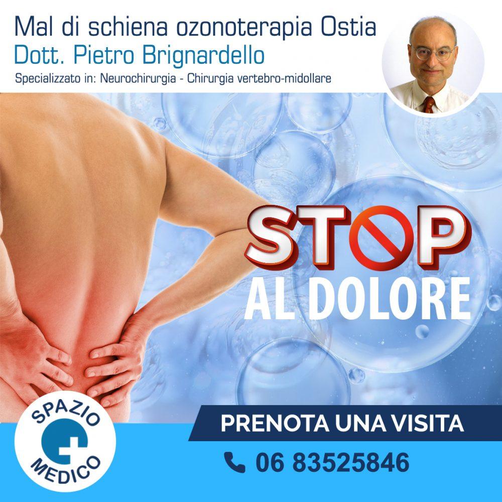 Mal-di-schiena-Ozonoterapia