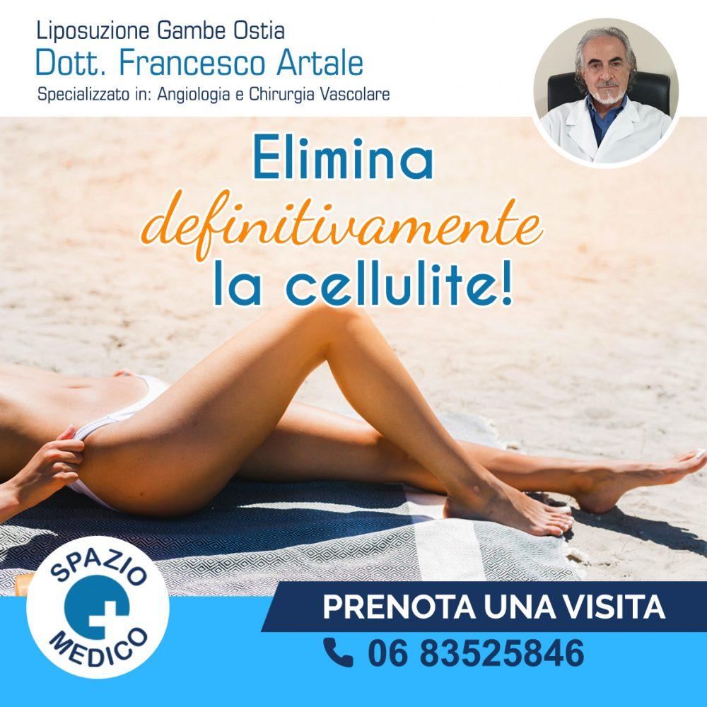 Elimina la cellulite-Ostia