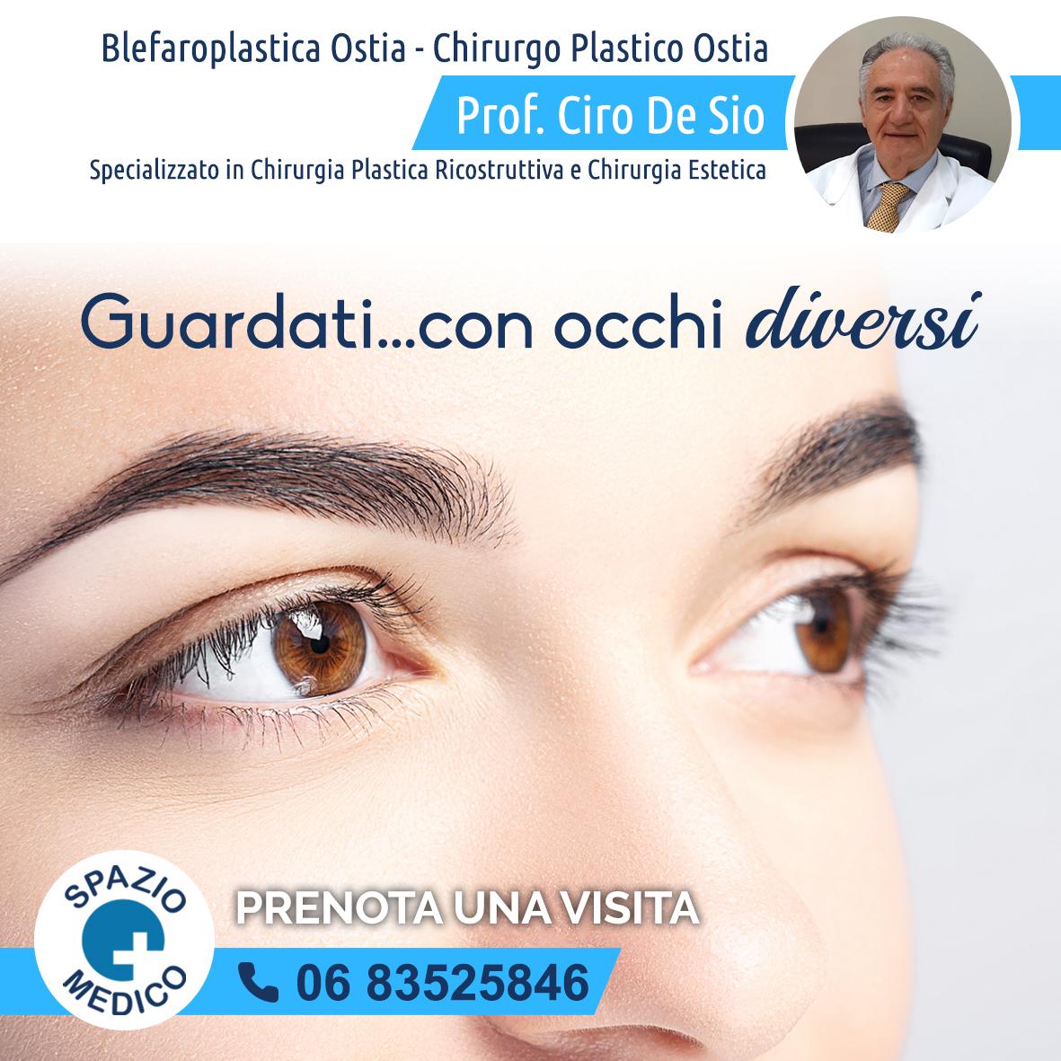Blefaroplastica-chirurgia-estetica