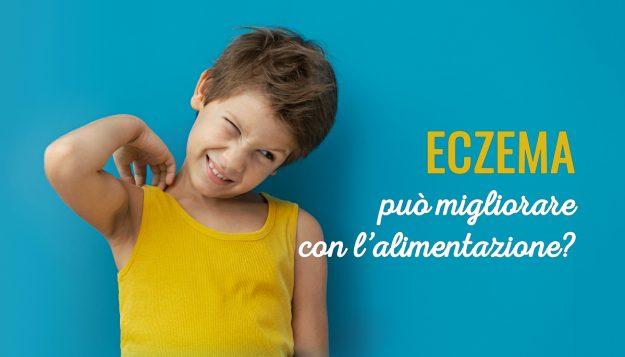 Eczema-puo-migliorare-con-l-alimentazione